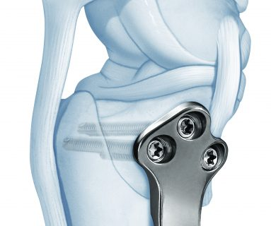 Advetis medical TPLO